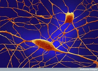 Consiguen convertir células humanas de la piel en neuronas