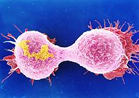 Desarrollan un tratamiento para destruir las células del cáncer con ayuda de nanotubos de carbono
