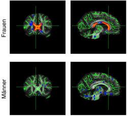 Efectos de la obesidad en el cerebro